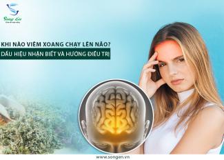 """Khi nào viêm xoang """"chạy"""" lên não? Dấu hiệu nhận biết và hướng điều trị"""